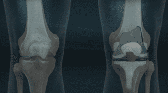 what is a knee implant made of - ravi bashyal